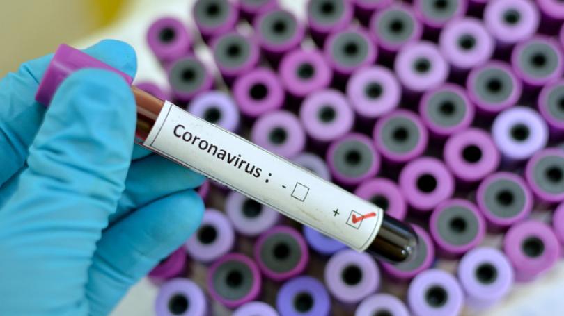 576 cazuri de COVID-19, înregistrate în ultimele 24 ore